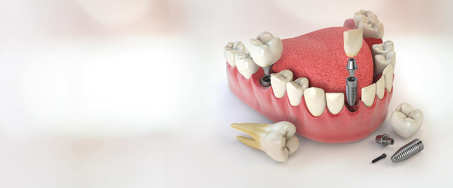 Implant Technology - Dent Menderes Oral and Dental Health Clinic